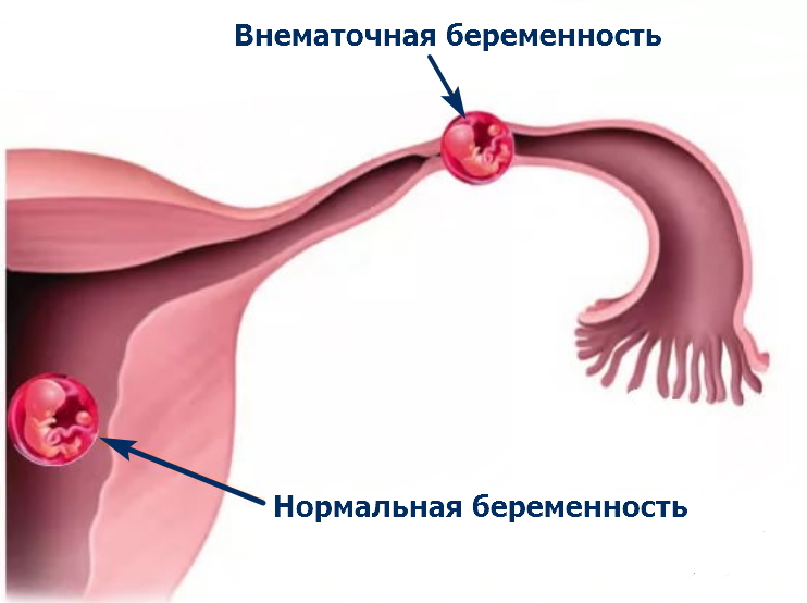 Тубэктомия