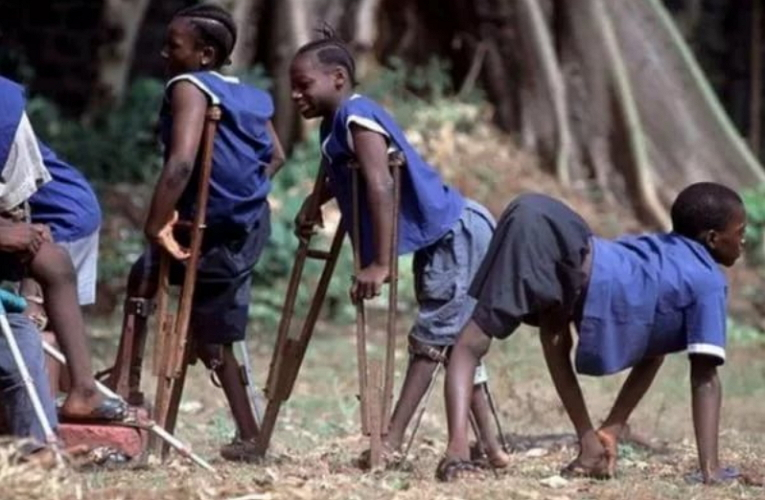 Острый полиомиелит