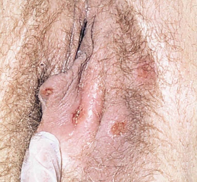 фото половых органов лампы - 5