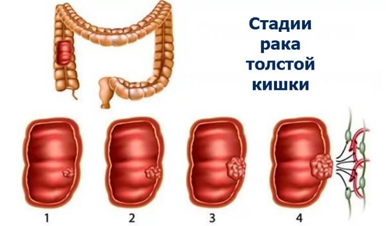 3 стадия рака толстой кишки