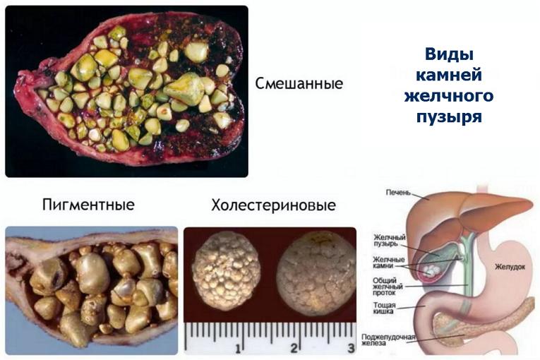 Камни в желчном пузыре: симптомы, лечение, операция
