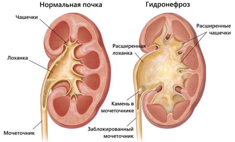 Гидронефроз у детей