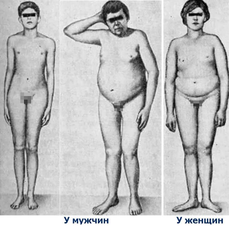 Евнухоидизм