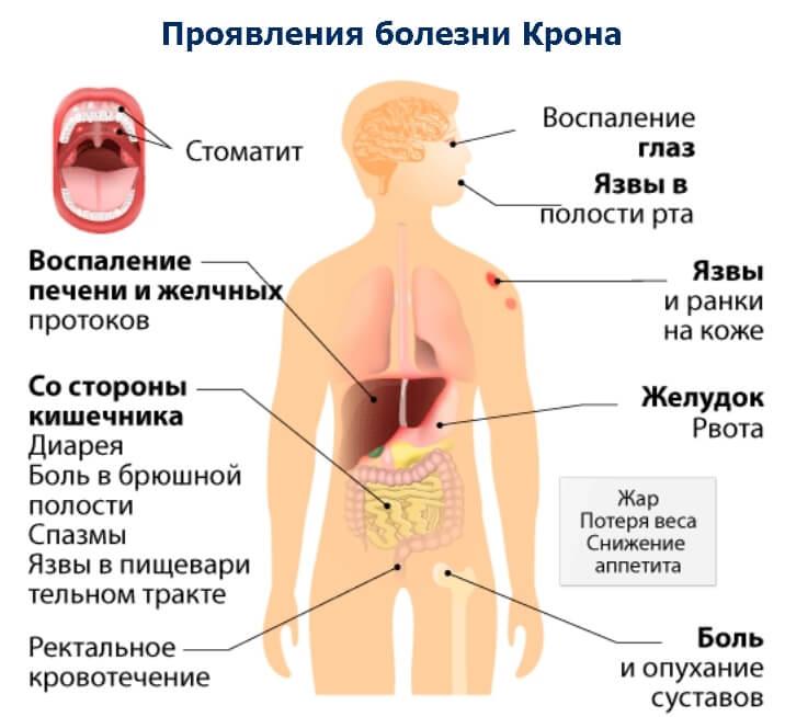 Что такое болезнь Крона