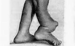 Врожденный ложный сустав большеберцовой кости