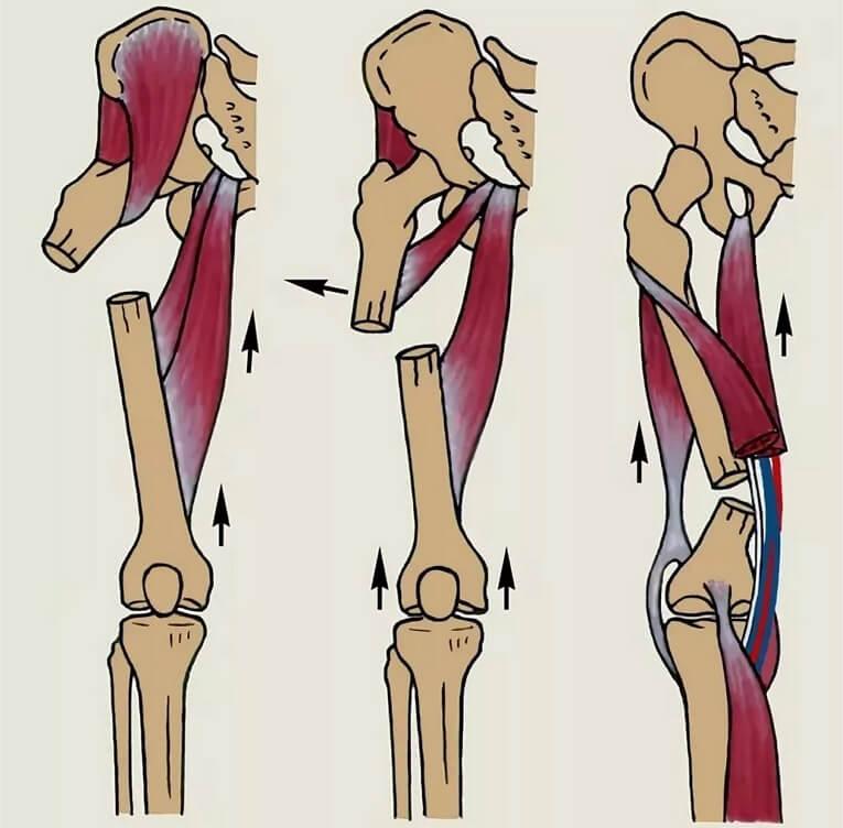 Перелом диафиза левой бедренной кости