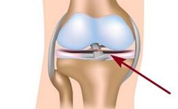 Повреждение крестообразных связок коленного сустава