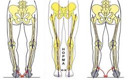 Внутренняя ротация костей голени
