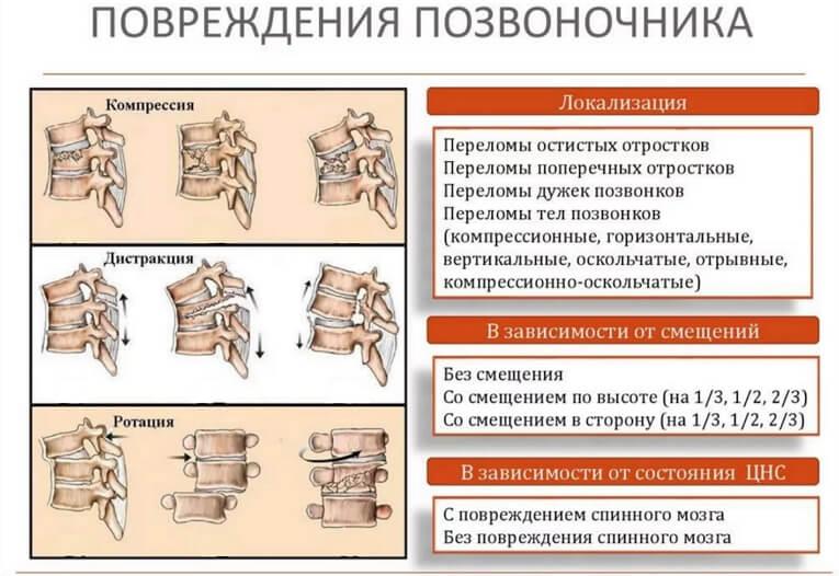 Травмы позвоночника