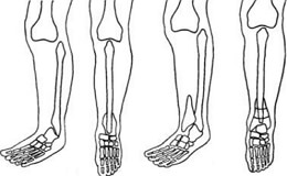 Врожденное отсутствие большеберцовой кости
