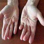 Контрактура пальцев кисти