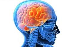 Отогенный абсцесс мозга