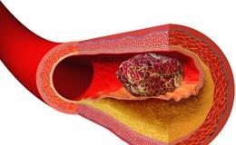 Тромбозы и эмболии артерий