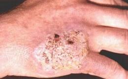 Туберкулез кожи кисти