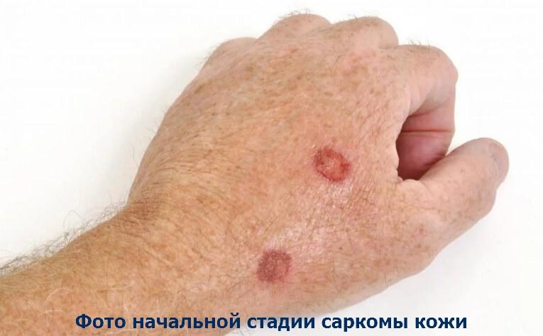 Саркома кожи