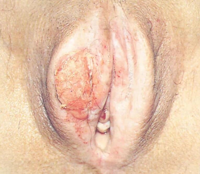 Рак наружных половых органов у женщин