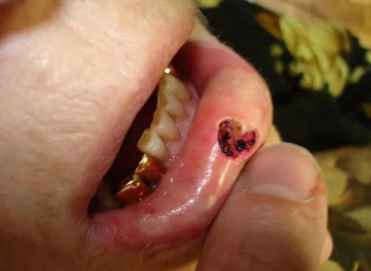 Рак нижней губы