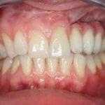 Рак верхней челюсти