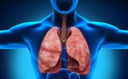 Сифилис легких