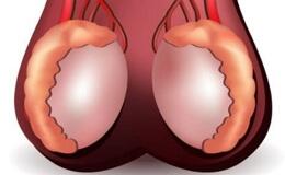 Злокачественные опухоли яичка