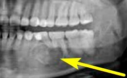 Рак нижней челюсти