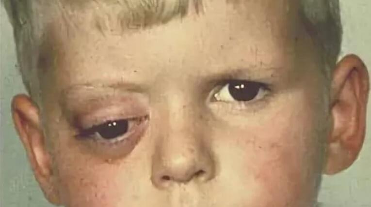 Саркома глазницы