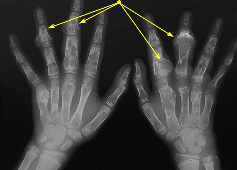 Доброкачественные опухоли костей