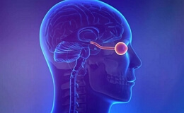 Опухоли зрительного нерва