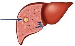 Злокачественные опухоли печени