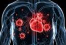 Что такое инфекционный эндокардит