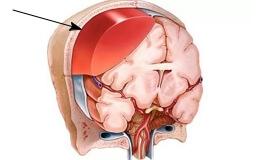 Что такое субдуральная гематома