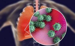 Что такое атипичная пневмония